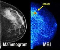 Mammogram vs. MBI