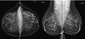 conventional mammography