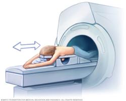 Mayo Clinic Breast MRI