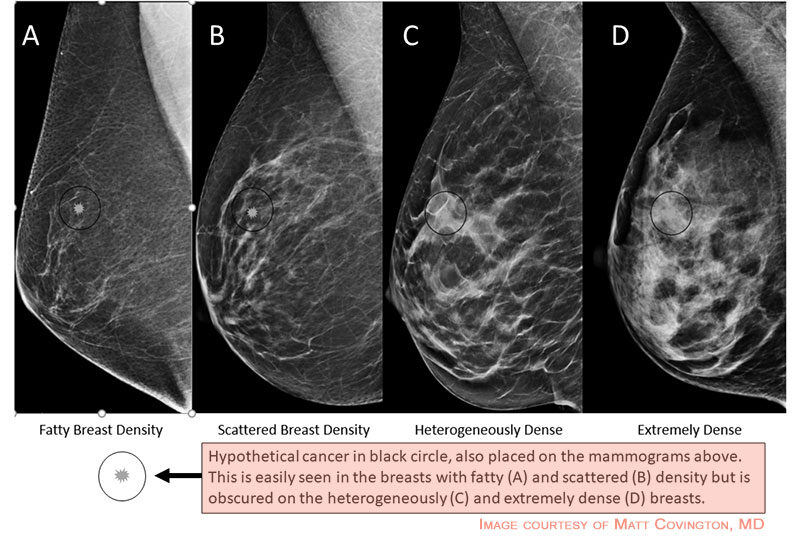 The more dense your breasts are, the more difficult to see through the tissue.